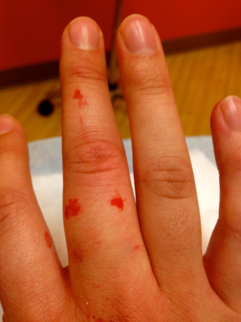 finger post digital bloc